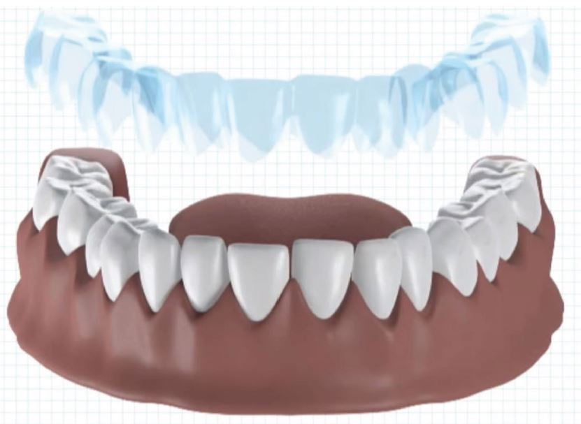 Dental-SLA®-DLP®-MOVINGLight®-case-study