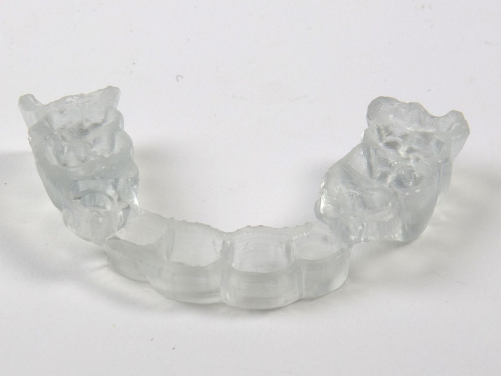 3D-printed-dental-surgical-guide-clear-200