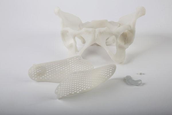 3D-printed-medical-parts