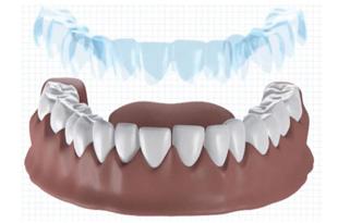 Dental-aligners-models-orthodontic-additive-manufacturing